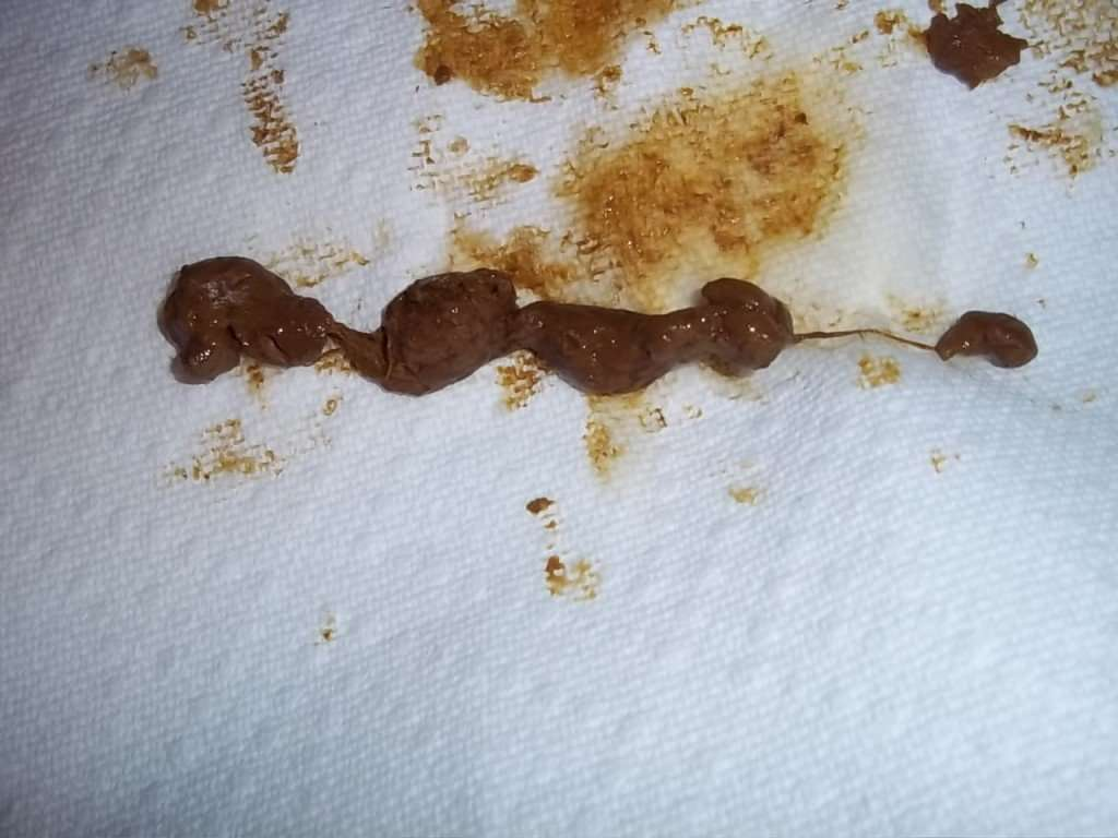 What Intestinal Mucous Looks Like